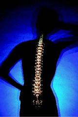 osteoporosis_female
