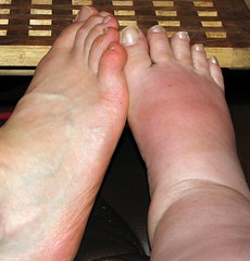 My swollen feet