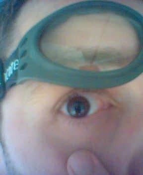 t637 lasik eye goggles