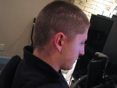 Five weeks later2 (warhof) Tags: head cut injury surgery wound scar staples blackeye