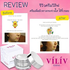 ผิวขาว หน้านุ่ม ผิวผ่อง เปล่งออร่าแบบธรรมขาติ ไร้ริ้วรอยแบบสาวเกาหลี เลือก VILIV White Platinum Perfect Cream ครีมที่สกัดจากส่วนผสมระดับพรีเมี่ยมจากธรรมชาติอย่าง ทองคำขาว หอยเป๋าฮื้อ เมือกหอยทาก ใบบัวบก ดอกโบตั๋น ไวน์ สาหร่ายทั้ง 4 ชนิด ช่วยต่อต้านการเกิด