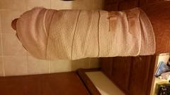 After surgery wrap. (Adventurer Dustin Holmes) Tags: bandages brokenwrist 2017 bandaged bandagedarm