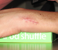 day 23 post-surgery (eoshea) Tags: scar surgery makeovers wrist