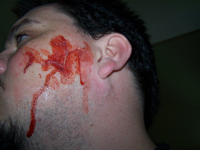 Head Injury Shot