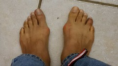 Ouch! (artistmac) Tags: red feet ouch foot toes toe swollen sore blackandblue bunions fourthtoe 4thtoe