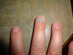 DSC06217 (ce_doit_etre) Tags: 2016 finger injury