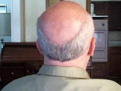 how to fix a bald head fringe