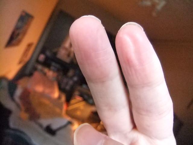 Thumb sucking dominant hand consider