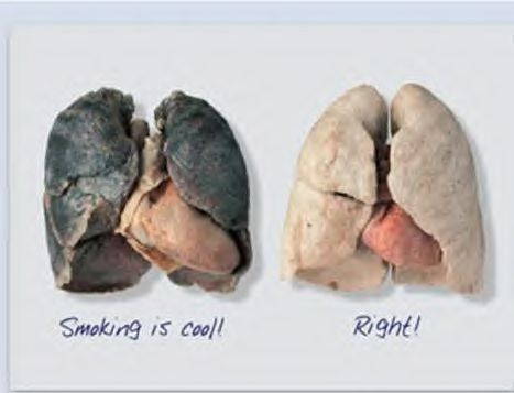 before and after smoking lungs. Bad lung (due to smoking) vs
