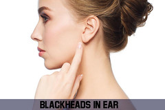 how to get rid of blackheads in ear (howalee1) Tags: blackheads ear