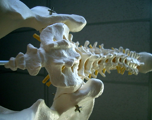 dem bones by jurvetson, on Flickr