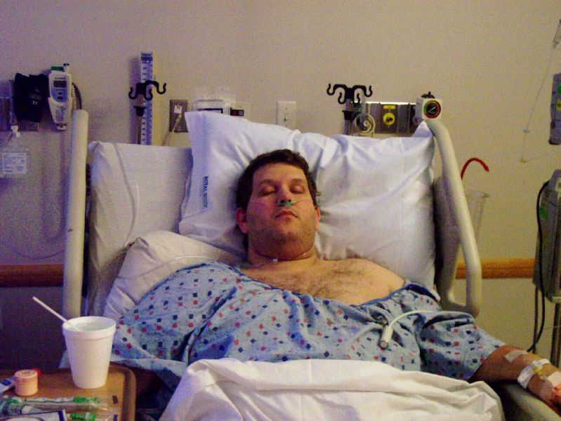 Newly post-op, May 2004