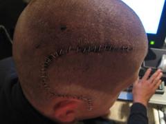 Staples One (warhof) Tags: idiot head cut injury surgery wound scar staples blackeye trauma