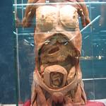 woman's torso with fetus in uterus thumbnail