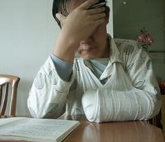 S003_ (pa_lbe) Tags: stump bandage amputee lbe