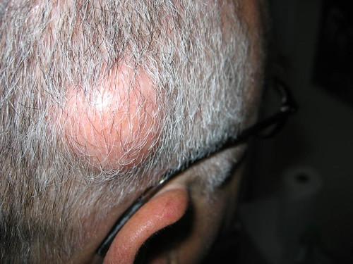 Barber Terminology : Barber Hair: Barber Terminology