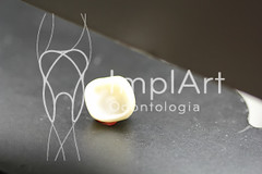 coroa de porcelana (110).jpg (Implart) Tags: saopaulo dentes antesedepois cerec especialista implante implantes reabilitacaooral implantodontia dayclinic cargaimediata implantedentario spaodontologico clinicadentaria implantetotallentedecontatodental implantecompleto cargatotal cargarapida prótesefixa