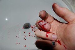 Flap On (Kommander Kuntz) Tags: ouch blood hand