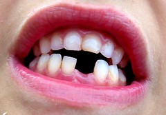 missing (joaobambu) Tags: 2005 brazil macro topv111 closeup brasil tooth mouth blog interestingness interesting topv555 topv333 missing teeth topv1111 stock lips blogged topv777 boca topf15 dente guilherme requested blogoit