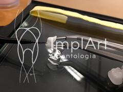 coroa de porcelana (3).jpg (Implart) Tags: saopaulo dentes antesedepois cerec especialista implante implantes reabilitacaooral implantodontia dayclinic cargaimediata implantedentario spaodontologico clinicadentaria implantetotallentedecontatodental implantecompleto cargatotal cargarapida prótesefixa