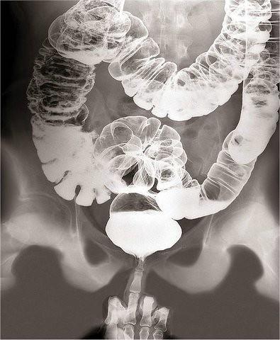 секс под рентгеном фото