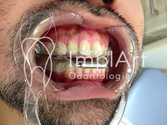 aparelho para ronco (2).jpg (Implart) Tags: saopaulo dentes antesedepois cerec especialista implante implantes reabilitacaooral implantodontia dayclinic cargaimediata implantedentario spaodontologico clinicadentaria implantetotallentedecontatodental implantecompleto cargatotal cargarapida prótesefixa