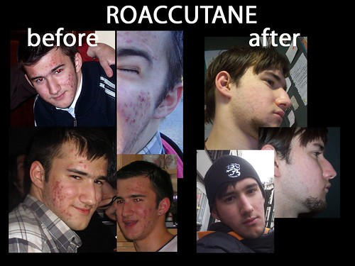 accutane before and after. Roaccutane efore and after