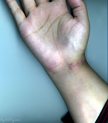 122805_wrist (twitchcraft) Tags: 2005 blue color me fingers kelley wrist scar