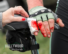 Blood red (Fran Hollywood Autosportpics.com) Tags: cycling cycle cyclingireland bike bicycle roadracing roadbike injury accident blood red bloodred hand fingers bandage racing roadrace