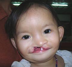 W08a My Linh Before Surgery (ReSurge International) Tags: charity asia tuesday beforeandafter premium ngo npo preop tho linh nonprofit mytho interplast annualreport2006 2vietnam 2vietnam0208