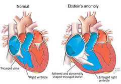 Tim Bẩm Sinh (anhvunguyendinh) Tags: pa lad pv aorta ivc anatomical anomoly diagnol svc cardiology circumflex leftventricle rightventricle papillary rightatrium aorticvalve foramenovale tricuspidvalve leftatrium pulmonaryartery pulmonaryvein cardiothoracicsurgery mitralvalve ductusarteriosus rightcoronary avnode leftcoronary venoussinus pulmonicvalve svnode chordaetenae