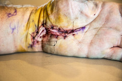 Carpal & Cubital Tunnel Surgery (Carpal & Cubital Tunnel Release) incisions (Rick Drew - 15 million views!) Tags: hand arm cut release tunnel surgery syndrome stitches nerve wrist operation staples median radial carpal ligament ulnar cubital sutchers