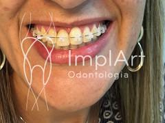 aparelho dentario - ortodontia - extrusão dentária (Implart) Tags: saopaulo dentes antesedepois cerec especialista implante implantes reabilitacaooral implantodontia dayclinic cargaimediata implantedentario spaodontologico clinicadentaria implantetotallentedecontatodental implantecompleto cargatotal cargarapida prótesefixa