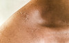 Consequences (Melissa Maples) Tags: cameraphone woman selfportrait me apple turkey asia peeling türkiye injury melissa antalya sunburn shoulder maples iphone 土耳其 iphone6