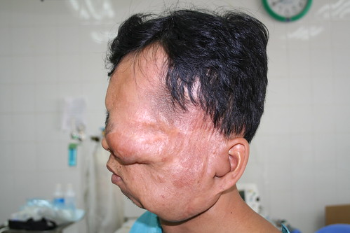 Tumor Patient Phuong by interplast.