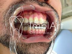 aparelho para ronco (1).jpg (Implart) Tags: saopaulo dentes antesedepois cerec especialista implante implantes reabilitacaooral implantodontia dayclinic cargaimediata implantedentario spaodontologico clinicadentaria implantetotallentedecontatodental implantecompleto cargatotal cargarapida prótesefixa