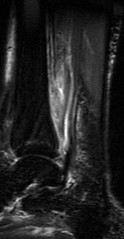 resonancia magnetica (godigna) Tags: tobillo
