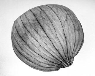 Onion peel focus stack