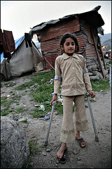 Girl on Crutches - Balakot, Pakistan (Maciej Dakowicz) Tags: pakistan camp people girl canon children photography eos earthquake october ruins relief problem help health 5d medicine kashmir crutches healthcare journalism ngo balakot