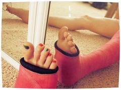 288 (katyacaster) Tags: broken leg cast woman feet