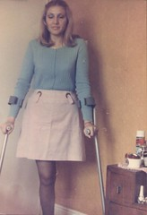 amp-836 (vsmrn) Tags: woman stump crutches amputee onelegged