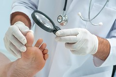 Athlete's Foot (Mushroom Infection) : Causes, Symptoms And Possible Treatments (HealthyEve) Tags: antifungals athletesfoot bacterialcellulitis cancer diabetes fever foot fungi health healthaz healthy healthyeve hiv immunesystems mushroominfection parasiticfungi skin superinfection toes topical