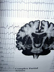 Complex Partial Seizure - Display