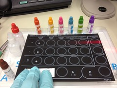 The late great bacterial antigen test. (ddsiple) Tags: screening meningitis laboratory microbiology bacterialantigentest directigen
