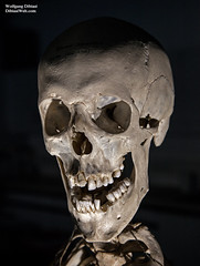 Human Skull (Wolfgang Dibiasi) Tags: totenkopf menschenschädel schädel mensch skelett echt knochen anatomie wolfgang dibiasi fotografie