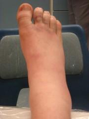 DSC00139 (docwharton) Tags: hospital steve leg cast ankle brokenankle