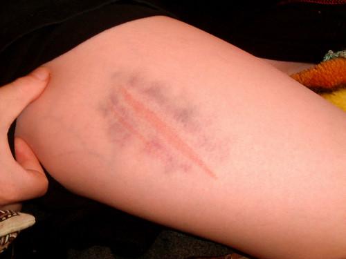 leg bruises tumblr - photo #10