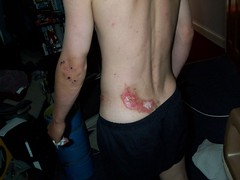 Matt's crash damage from MTB accident in Morzine, France (thebrad2000) Tags: ouch back pain hurt mountainbiking scar scab cuts graze morzine