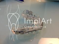 aparelho para ronco (6).jpg (Implart) Tags: saopaulo dentes antesedepois cerec especialista implante implantes reabilitacaooral implantodontia dayclinic cargaimediata implantedentario spaodontologico clinicadentaria implantetotallentedecontatodental implantecompleto cargatotal cargarapida prótesefixa