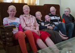 Tanzania, East Africa, Dar es Salaam, teens and children with albinism at under the same sun house (Eric Lafforgue) Tags: africa charity girls people boys childhood horizontal children tanzania person photography african daressalaam belief human believe innocence albino teenager genetic groupofpeople humanbeing curse ngo healer eastafrica witchdoctor tanzanian mutilated albinos pwa colorimage whiteskin lookingatcamera albinism underthesamesun colourimage africanethnicity 9people colourpicture utss tz147